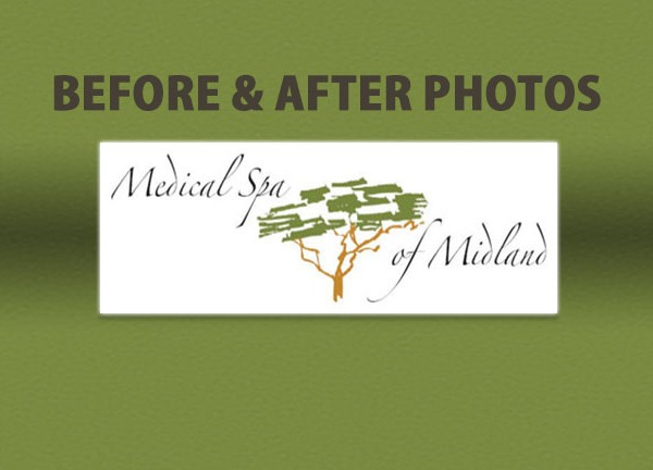 Before & After_1450209856838.jpg